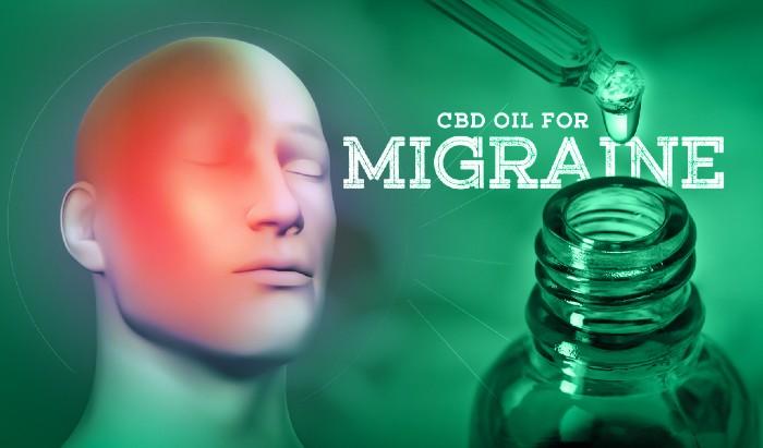 CBD Oil for Migraine